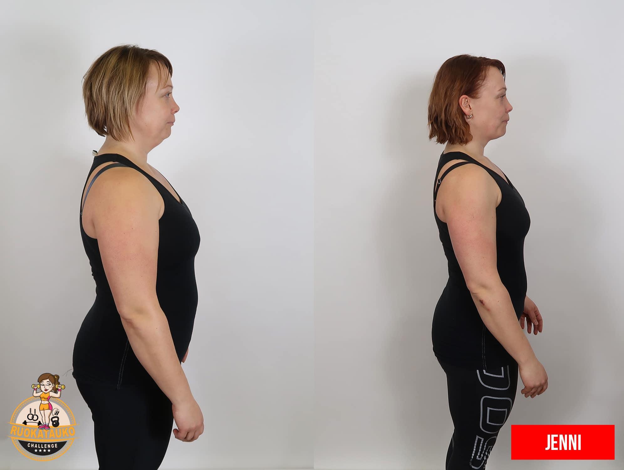 nainen sivulta ennen ja jälkeen