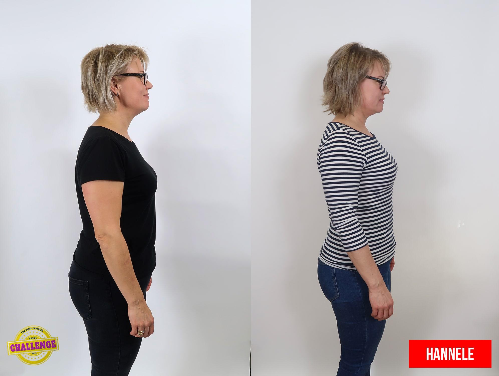 nainen sivulta ennen ja jälkeen muodonmuutos