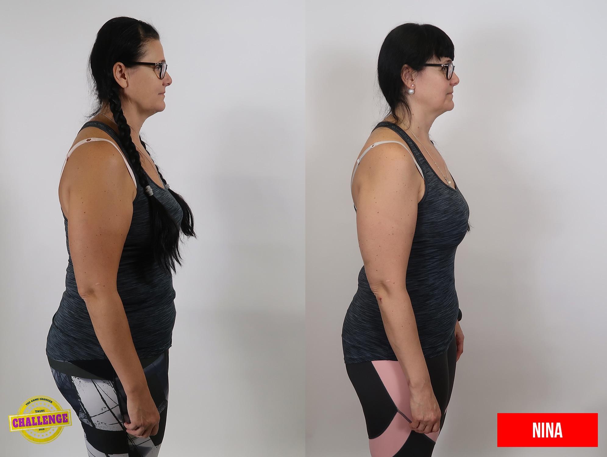 vanhempi nainen ennen ja jälkeen