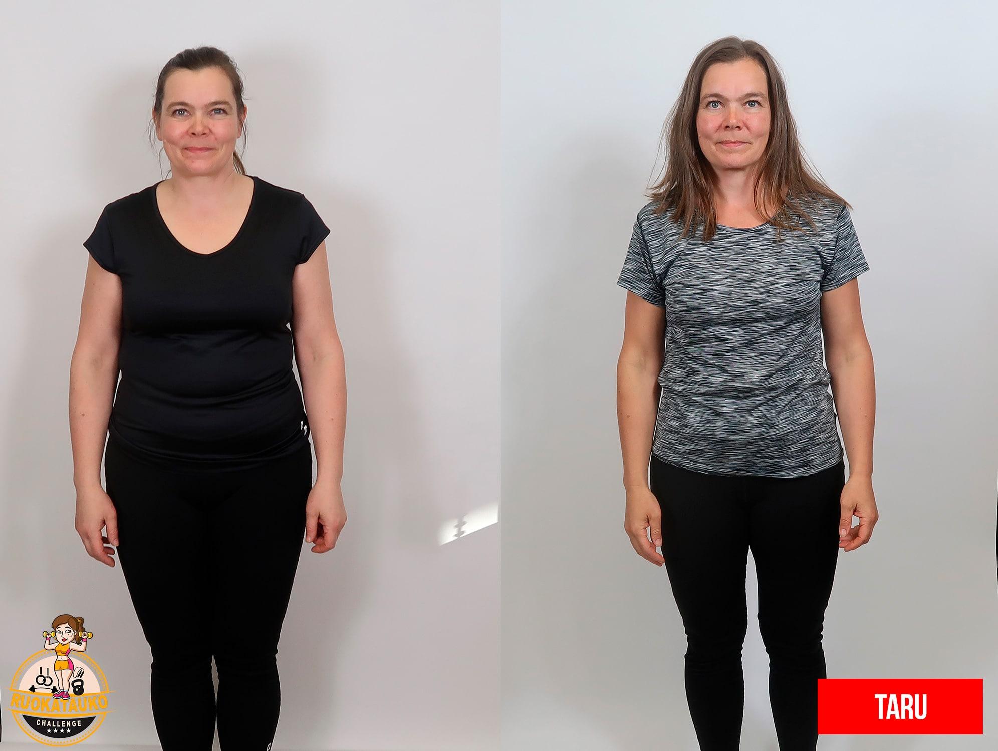 nainen edestä ennen ja jälkeen painonpudotus